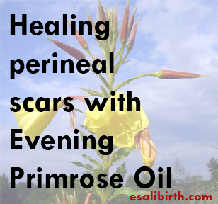 Healing Tears, Episiotomies, and Scars | Esali Birth